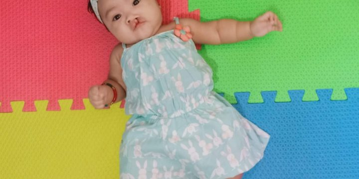Baby Arci: #CleftSmile